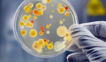 Analizy mikrobiologiczne oraz monitoring środowiska muzealnego i archiwalnego